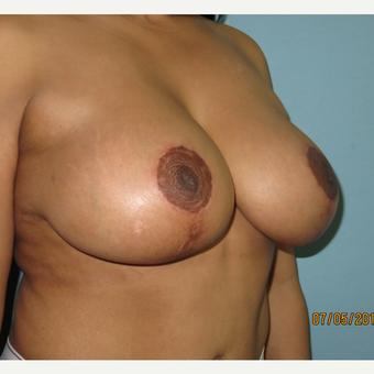 35-44 year old woman treated with Breast Lift with Implants after 3099651