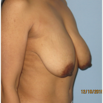 35-44 year old woman treated with Breast Lift with Implants before 3099651