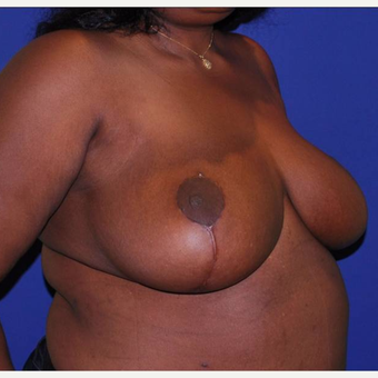 35 old lady of African descent with massive breast enlargement treated with breasts reduction after 2983226
