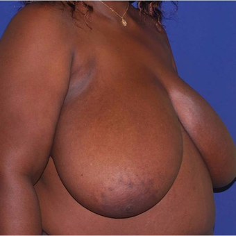 35 old lady of African descent with massive breast enlargement treated with breasts reduction before 2983226