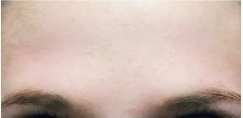 25-34 year old woman treated with Botox after 3332745
