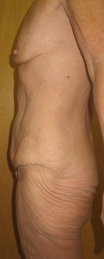 59 yr old bodylift and breast augmentation combined before 1387679