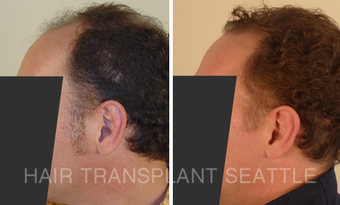 45-54 year old man treated with Hair Transplant before 2989983