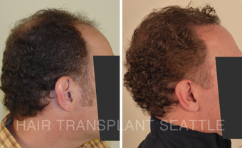 45-54 year old man treated with Hair Transplant after 2989983