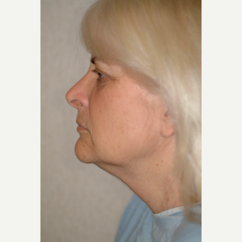 55-64 year old woman treated with Neck Lift before 3764473