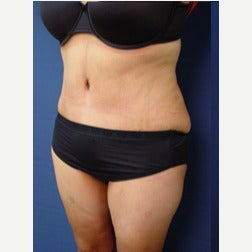 35-44 year old woman treated with Tummy Tuck after 2067364