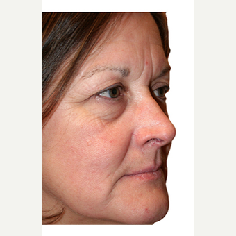 59 year old woman treated with Eye Bags Treatment before 2869849