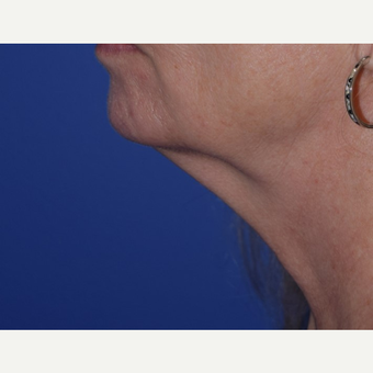 55-64 year old woman treated with laser-assisted Neck Lift before 3638982