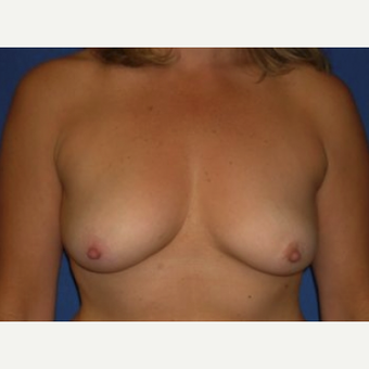 35-44 year old woman treated with Breast Augmentation before 3220144