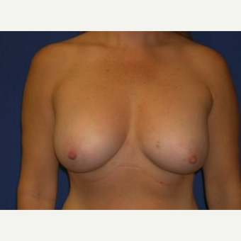 35-44 year old woman treated with Breast Augmentation after 3220144