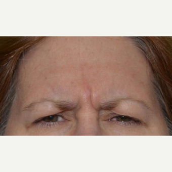 55-64 year old woman treated with Botox before 3520277