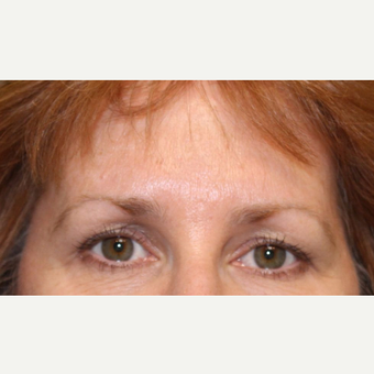 55-64 year old woman treated with Botox after 3520277