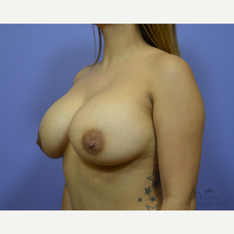 25-34 year old woman treated with Breast Augmentation after 3329310