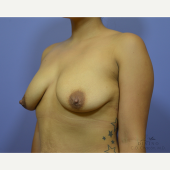 25-34 year old woman treated with Breast Augmentation before 3329310