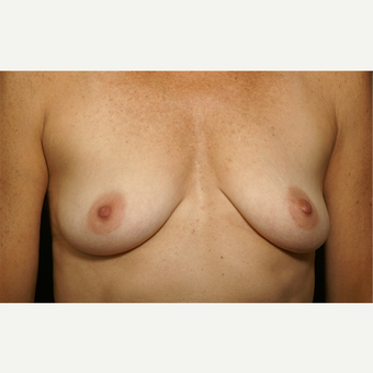 25-34 year old woman treated with Breast Augmentation before 3061642