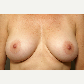 25-34 year old woman treated with Breast Augmentation after 3061642