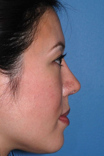 Asian Rhinoplasty after 81094