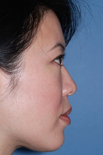 Asian Rhinoplasty before 81094