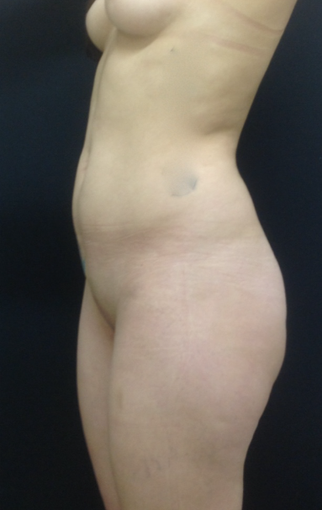 25-34 year old woman treated with Brazilian Butt Lift before 3747196