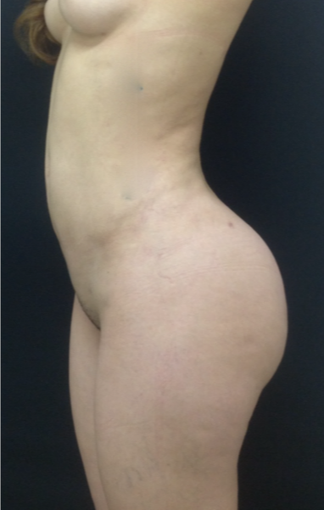 25-34 year old woman treated with Brazilian Butt Lift after 3747196