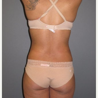 18-24 year old woman treated with Smart Lipo 1773289