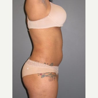 18-24 year old woman treated with Smart Lipo after 1773289