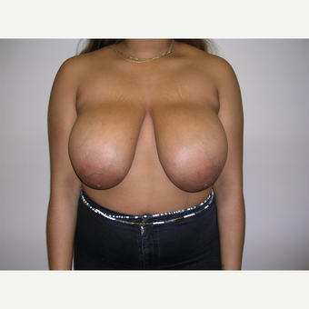 18-24 year old woman treated with Breast Reduction before 3070920