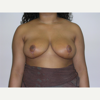 18-24 year old woman treated with Breast Reduction after 3070920