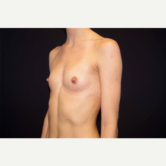25-34 year old woman treated with Breast Augmentation before 3280847