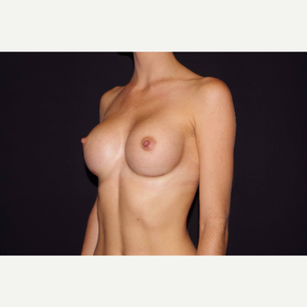 25-34 year old woman treated with Breast Augmentation after 3280847
