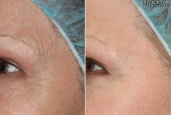 65-74 year old woman treated with Skin Rejuvenation before 2103293