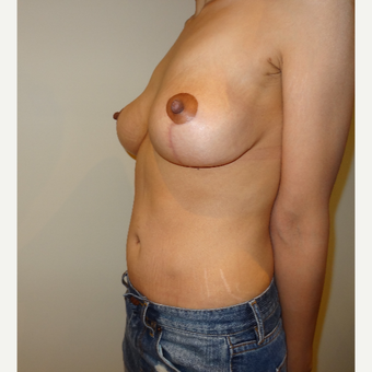 25-34 year old woman treated with Mommy Makeover