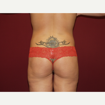 25-34 year old woman treated with Liposuction after 3454790