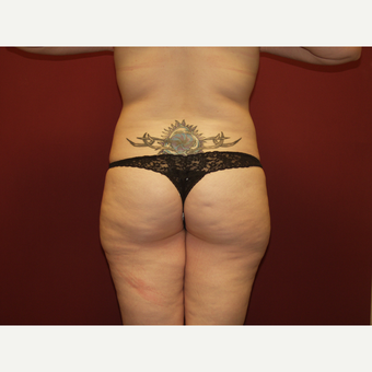 25-34 year old woman treated with Liposuction before 3454790