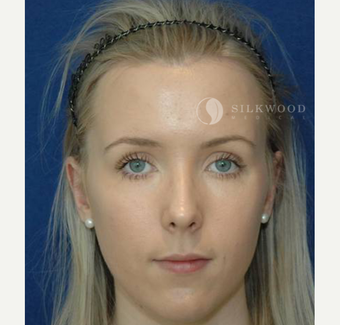 18-24 year old woman treated with Forehead Reduction after 2286737