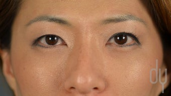 25-34 year old woman treated with Asian Eyelid Surgery before 2990818