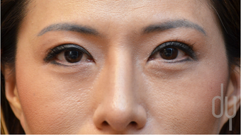 25-34 year old woman treated with Asian Eyelid Surgery after 2990818