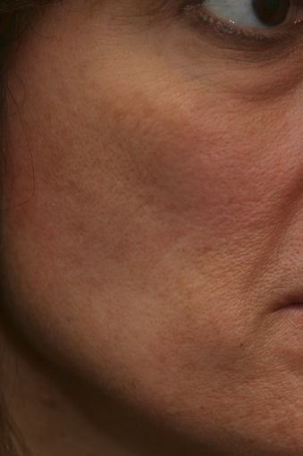 Portrait PSR3 Plasma Skin Resurfacing