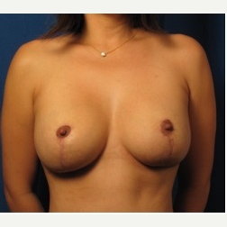 25-34 year old woman treated with Breast Augmentation after 3326832