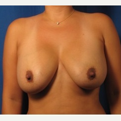 25-34 year old woman treated with Breast Augmentation before 3326832