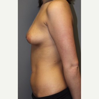 18-24 year old woman treated with Breast Augmentation before 3129143