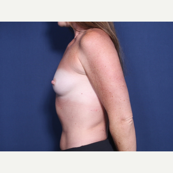 25-34 year old woman treated with Breast Augmentation (view 2 of 2) before 3142289