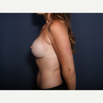 25-34 year old woman treated with Breast Augmentation (view 2 of 2) after 3142289