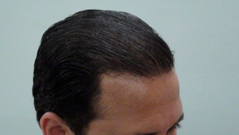 25-34 year old man treated with Hair Transplant 1688125