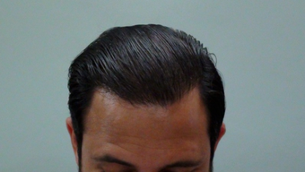 25-34 year old man treated with Hair Transplant after 1688125