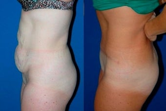Tummy Tuck before 3037903