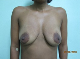 35-44 year old woman treated with Breast Lift with Implants before 1634738