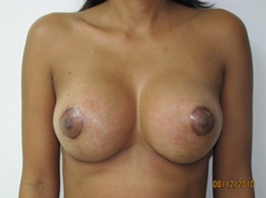 35-44 year old woman treated with Breast Lift with Implants after 1634738