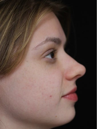 25-34 year old woman treated with Acne Scars Treatment after 3083076