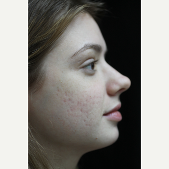 25-34 year old woman treated with Acne Scars Treatment before 3083076